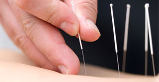 Traditional Acupuncture Therapies